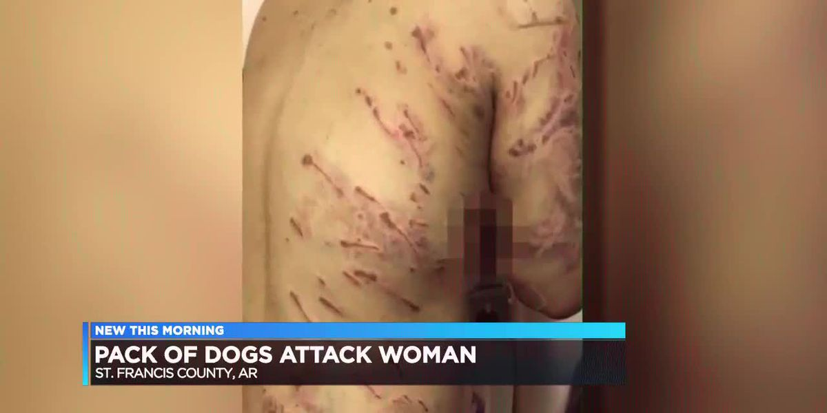 GRAPHIC VIDEO: Woman suffers 100s of bites in dog attack