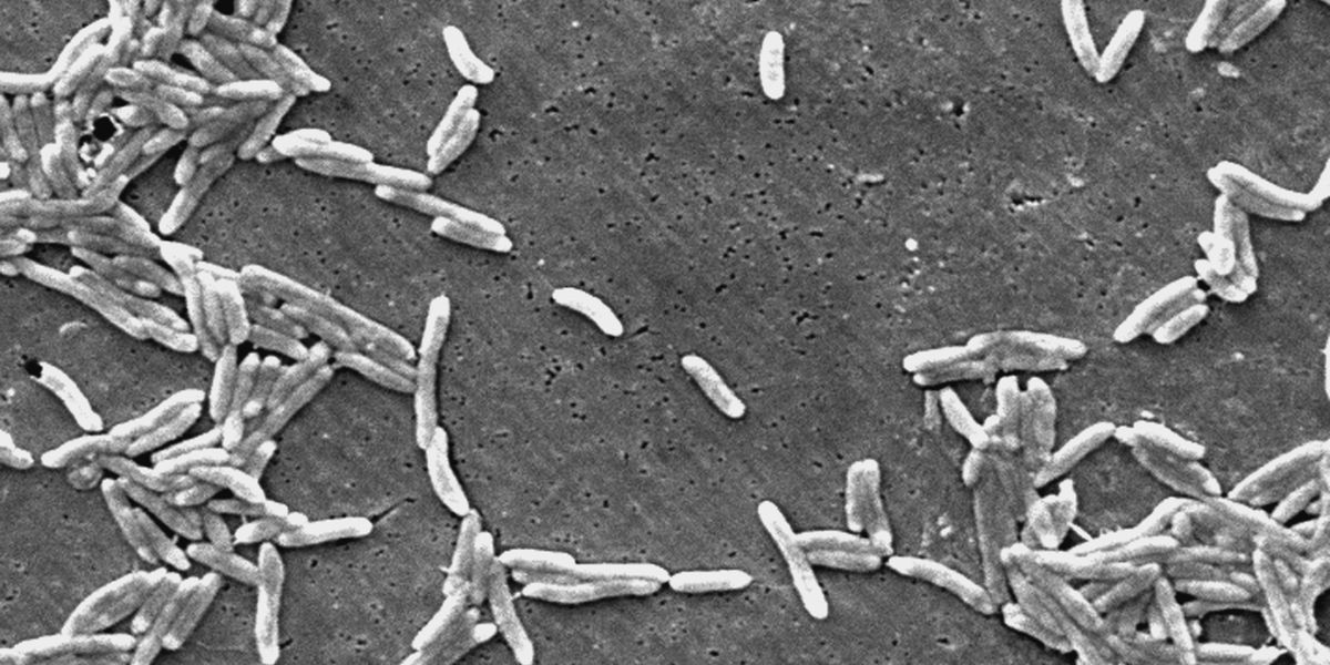 Backyard poultry, dog treats cause nationwide salmonella outbreak, two deaths reported