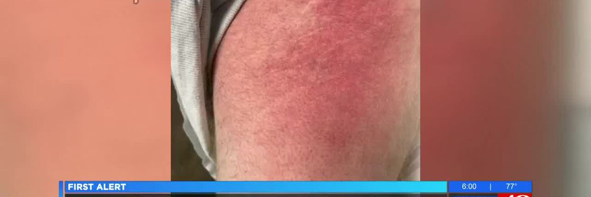 Family: Ala. man infected with flesh-eating bacteria after kayaking on Tenn. River