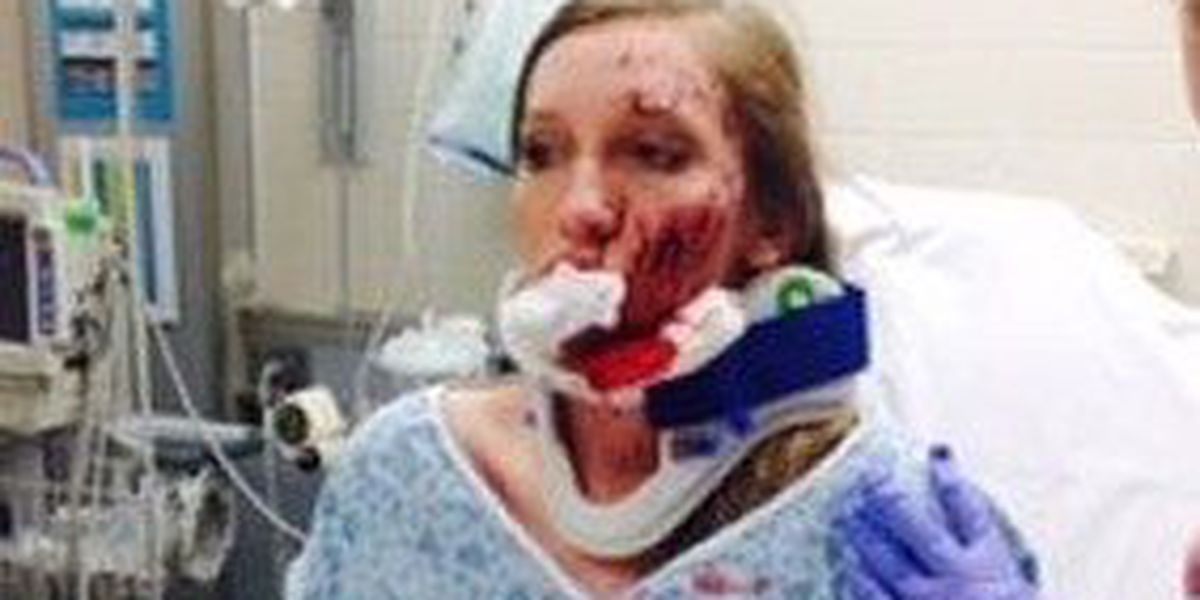 Paragould girl impaled by deer antler shares her experience