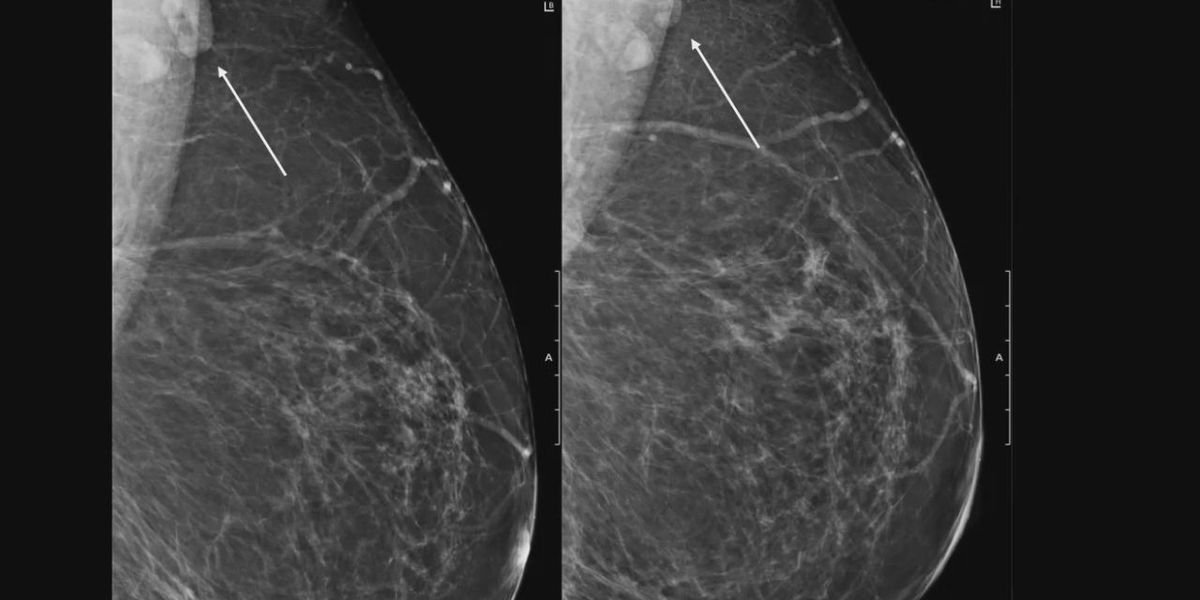 Doctor recommends mammogram screenings after vaccine
